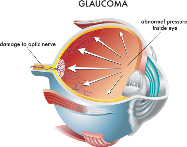 Glaucoma in Sattler