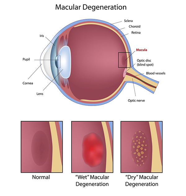 Macular Degeneration Treatment in Sattler